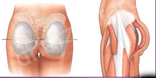 جراحی پروتز باسن