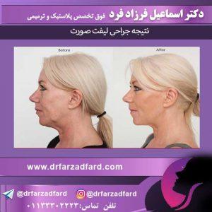 بالا کشیدن پوست صورت