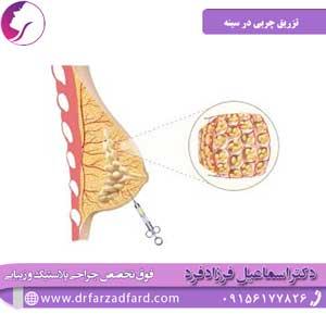 تزریق چربی در سینه