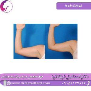 لیپوماتیک بازوها