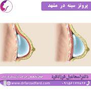 پروتز سینه در مشهد
