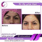 جراحی زیبایی پلک در مشهد