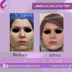 نمونه ترمیمی جراحی زیبایی بینی