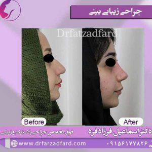 نمونه جراحی بینی بسیار بزرگ
