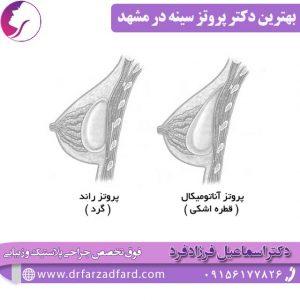 بهترین دکتر پروتز سینه در مشهد