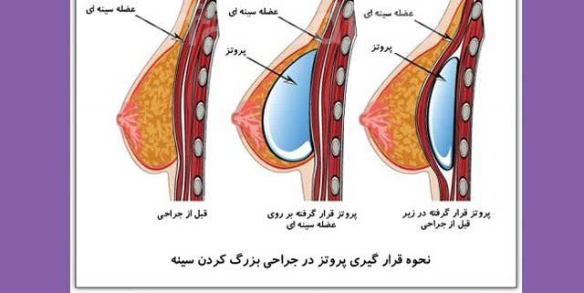 پروتز سینه توسط دکتر اسماعیل فرزادفرد