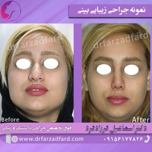 نمونه جراحی بینی بزرگ و گوشتی
