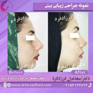 عکس نمونه جراحی زیبایی بینی خانم توسط دکتر فرزادفرد
