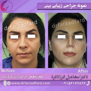 نمونه ایی از جراحی زیبایی بینی توسط دکتر فرزادفرد