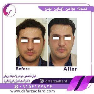 جراحی زیبایی بینی با انحراف زیاد