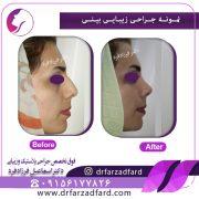 عوارض جراحی بینی