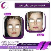 جراحی بینی دکتر فرزادفر