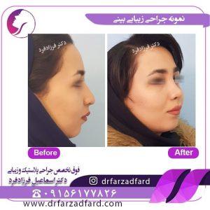 جراحی زیبایی بینی استخوانی زیر نظر دکتر فرزادفرد
