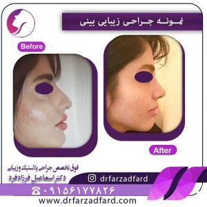 جراحی بینی قوز دار توسط دکتر فرزادفرد