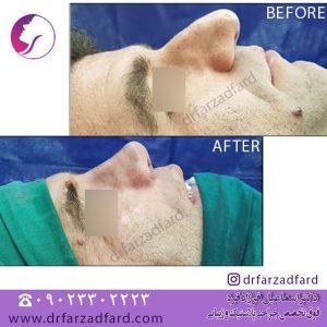 جراحی زیبایی بینی استخوانی بسیار بزرگ در اتمام جراحی بینی