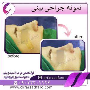 جراحی بینی استخوانی زیر نظر دکتر اسماعیل فرزاد فرد