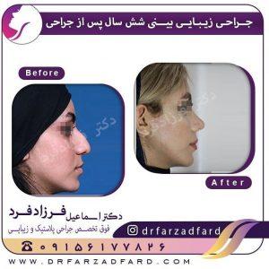 نمونه جراحی زیبایی بینی 6 سال پس از عمل