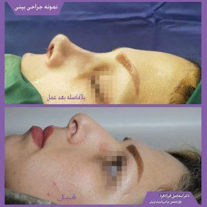 نمونه جراحی زیبایی بینی با دکتر قرزادفرد