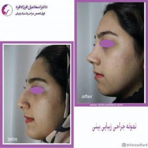 جراحی زیبایی بینی استخوانی دکتر فرزادفرد