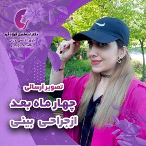4 ماه پس از جراحی زیبایی بینی توسط دکتر فرزادفرد